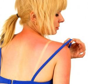 Защищаем кожу от солнца