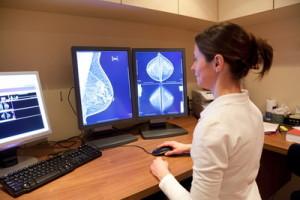 Маммография - обязательная диагностика