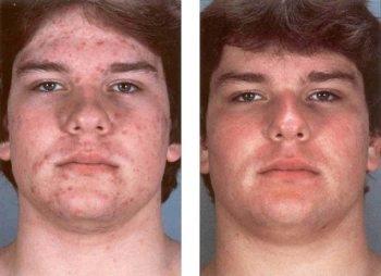 Как выбрать дарсонваль для лица и проблемной кожи?
