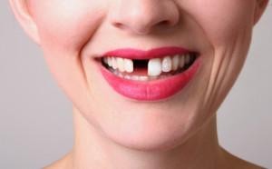 Причины потери зубов