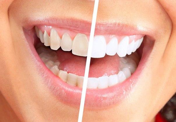 налет на зубах