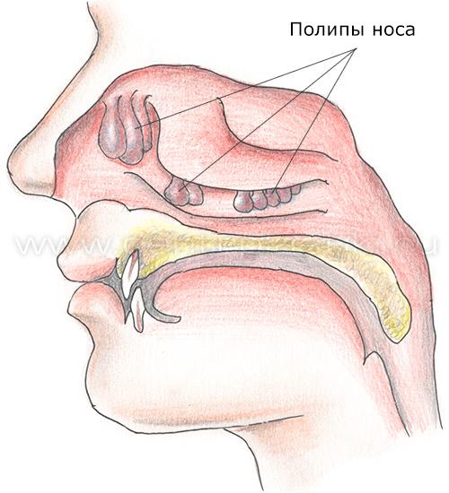 Полип в носу